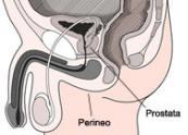 il massaggio fatto sulla prostata e sul perineo